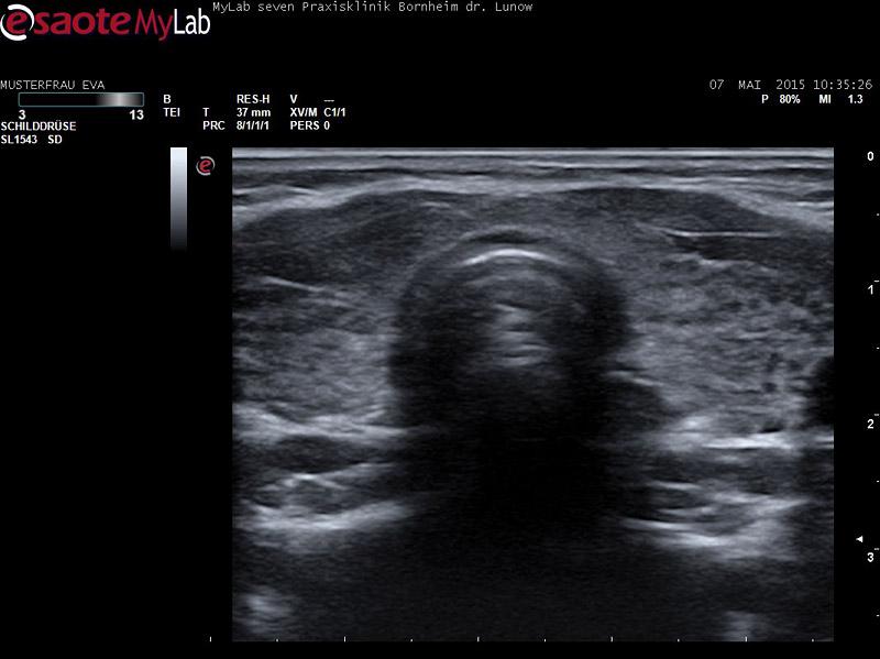 Hashimoto und Muskelschmerzen
