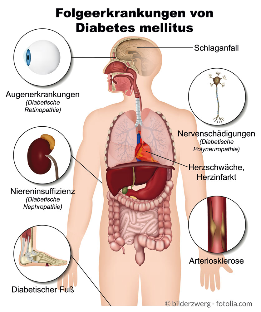 diabetes Typ 2 ursache