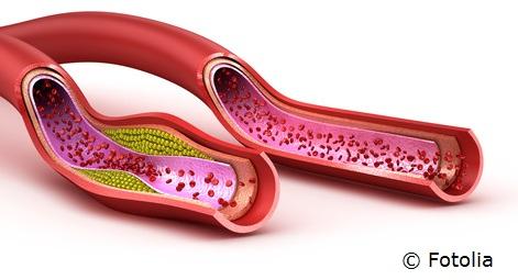Oft unterschätzt: Die Gesundheit der Blutgefäße