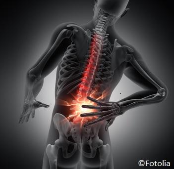 Ischias - Wenn der Rückenschmerz ins Bein zieht