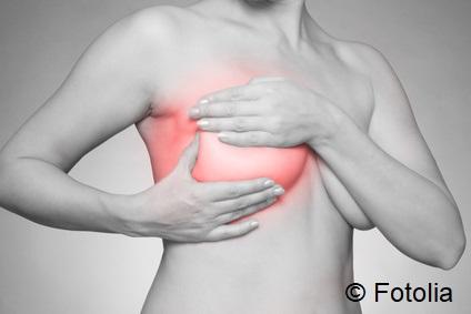 Brustkrebs:  Cholesterinsenker wie Statine verbessern Prognose