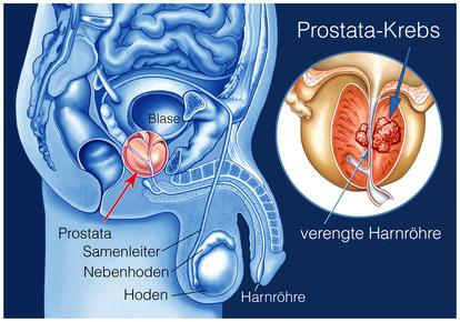 Früherkennung und genaue Diagnose sind entscheidend: Eine Opteration bringt kaum Vorteile, wenn der Tumor auf die Prostata beschränkt ist.