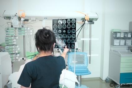Keine Empfehlung zur Patientenlagerung nach akutem Schlaganfall