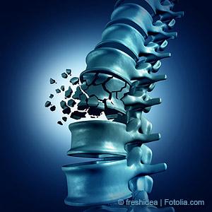 Osteoporose ist nicht heilbar und verläuft mangels eindeutiger Symptome oft lange unerkannt – bis zum ersten Knochenbruch.