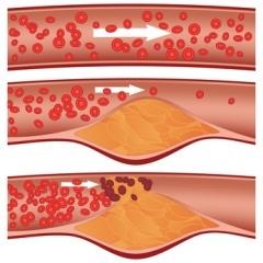 Verengung der der Halsschlagader: Schlaganfallgefahr