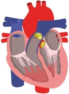 Im Winter steigt die Gefahr einer Herzmuskelentzündung